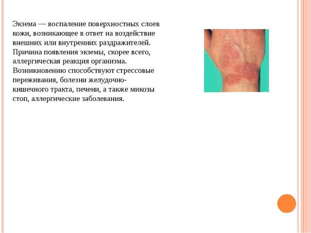 Экзема — воспаление поверхностных слоев кожи, возникающее в ответ на воздейст...
