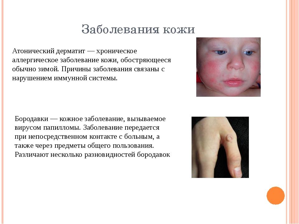 Заболевания кожи Атонический дерматит — хроническое аллергическое заболевание...