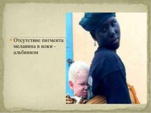Отсутствие пигмента меланина в кожи - альбинизм