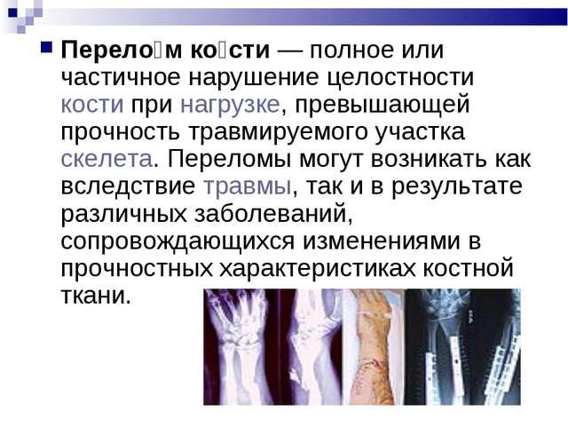 Перело́м ко́сти— полное или частичное нарушение целостности кости при нагруз...