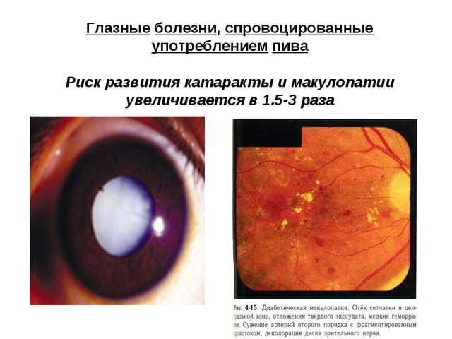 Глазные болезни, спровоцированные употреблением пива Риск развития катаракты...