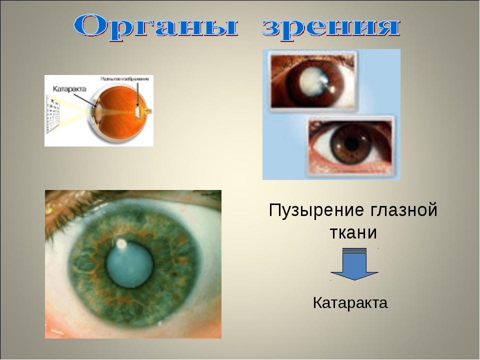 Пузырение глазной ткани Катаракта