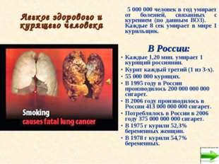Легкое здорового и курящего человека 5 000 000 человек в год умирает от болез