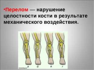Перелом — нарушение целостности кости в результате механического воздействия.