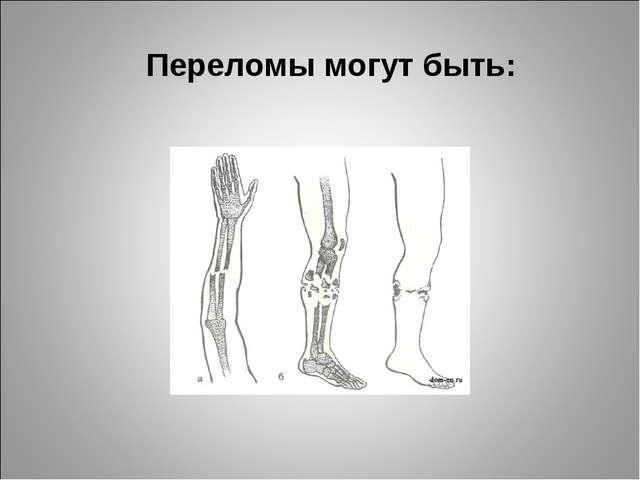 Переломы могут быть: