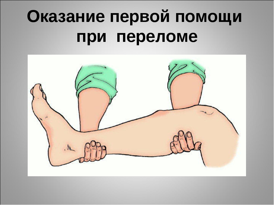 Оказание первой помощи при переломе
