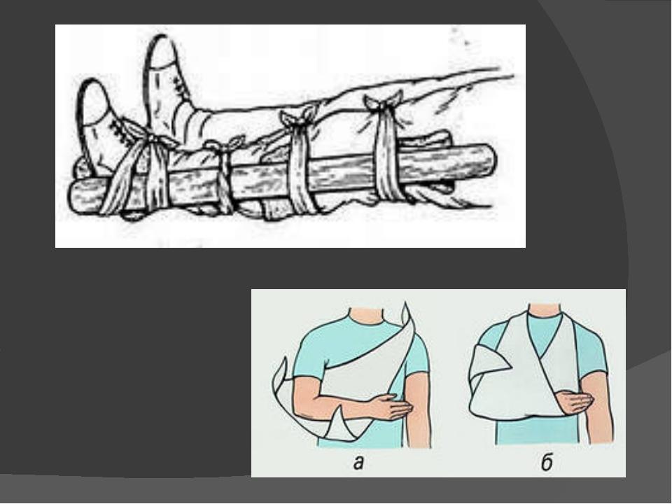 Первая помощь при вывихе суставов картинки