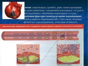 Этиология: атеросклероз, тромбоз, реже спазм коронарных артерий, реже ревмати