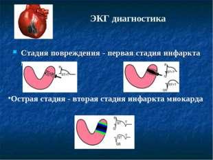 ЭКГ диагностика Стадия повреждения - первая стадия инфаркта миокарда Острая с