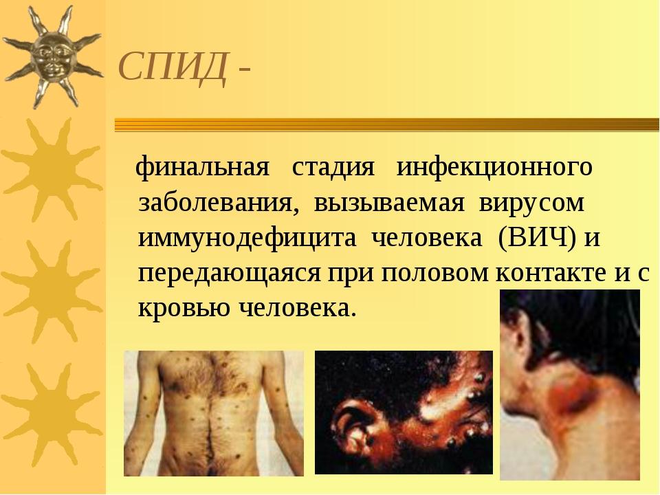 СПИД - финальная стадия инфекционного заболевания, вызываемая вирусом иммунод...