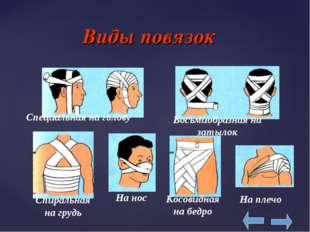 Виды повязок Специальная на голову Восьмиобразная на затылок На нос Спиральн