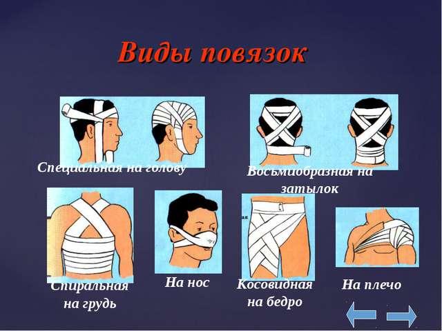 Виды повязок Специальная на голову Восьмиобразная на затылок На нос Спиральн...