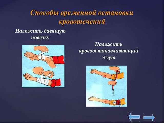 Способы временной остановки кровотечений Наложить давящую повязку Наложить кр...