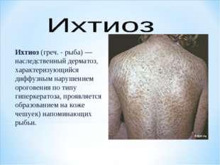 Ихтиоз (греч. - рыба)— наследственный дерматоз, характеризующийся диффузным