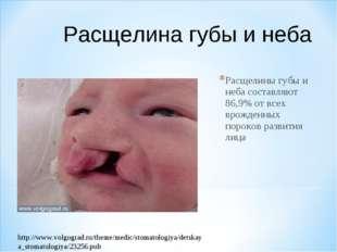 Расщелины губы и неба составляют 86,9% от всех врожденных пороков развития ли