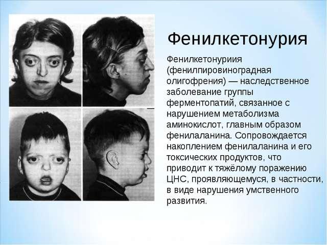 Фенилкетонурия Фенилкетонуриия (фенилпировиноградная олигофрения) — наследств...
