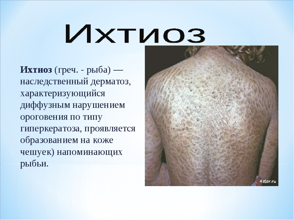 Ихтиоз (греч. - рыба)— наследственный дерматоз, характеризующийся диффузным...