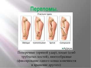 Переломы. Поперечные (прямой удар), косые (сгиб трубчатых костей), винтообраз
