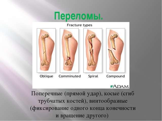 Переломы. Поперечные (прямой удар), косые (сгиб трубчатых костей), винтообраз...