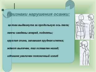 ж Признаки нарушения осанки: голова выдвинута за продольную ось тела; плечи с