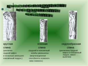 круглая плоская спина спина (увеличен (грудной и поясничный грудной кифоз изг