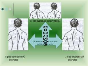Правосторонний Левосторонний сколиоз сколиоз S-образные сколиозы ) (боковое