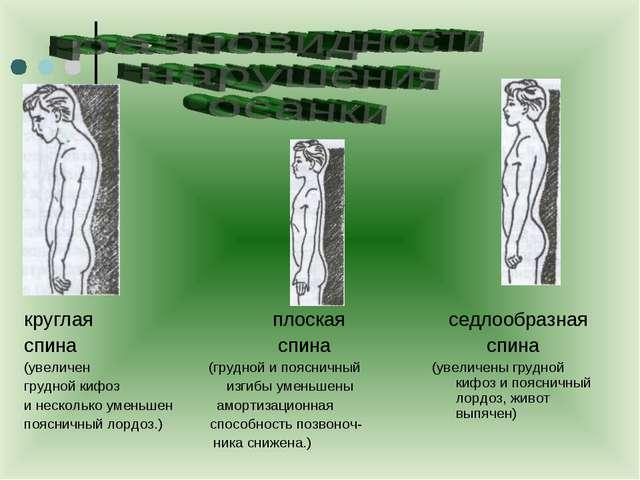 круглая плоская спина спина (увеличен (грудной и поясничный грудной кифоз изг...
