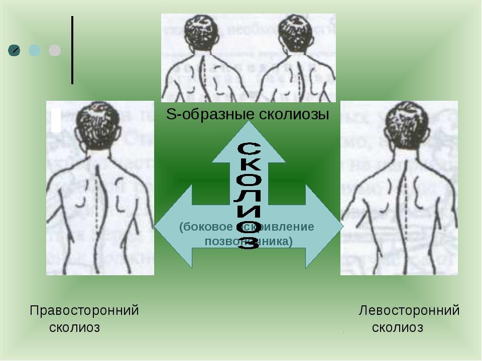 Правосторонний Левосторонний сколиоз сколиоз S-образные сколиозы ) (боковое...
