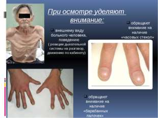 При осмотре уделяют внимание: внешнему виду больного человека, поведению ( ре