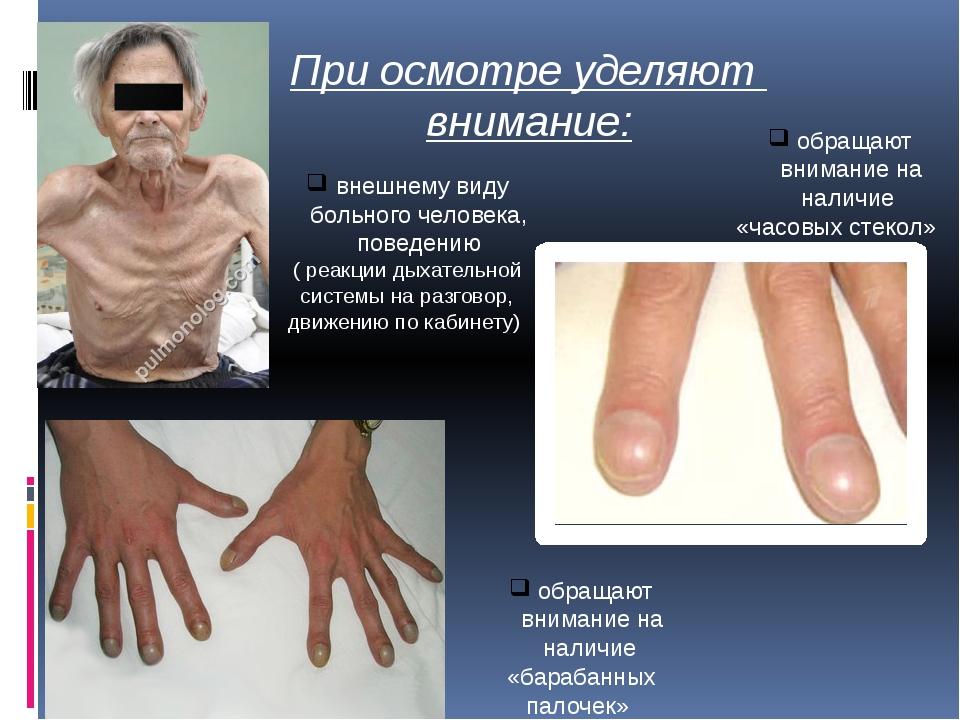При осмотре уделяют внимание: внешнему виду больного человека, поведению ( ре...