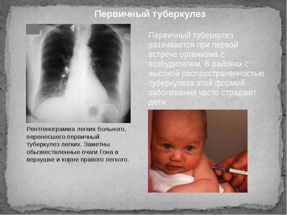 Первичный туберкулез развивается при первой встрече организма с возбудителем....