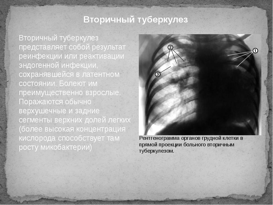 Вторичный туберкулез Вторичный туберкулез представляет собой результат реинфе...