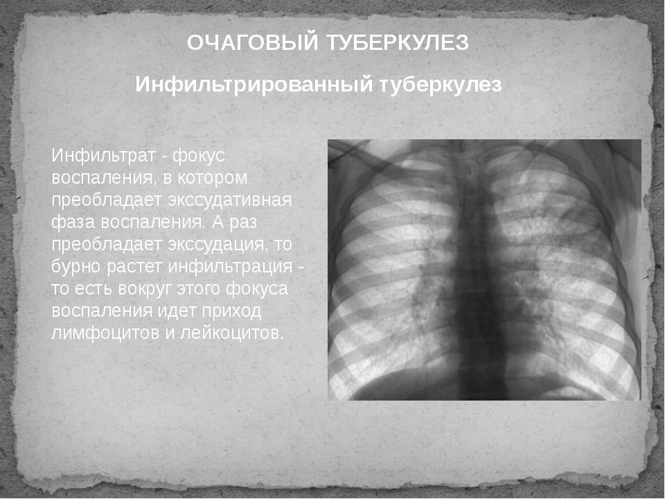 Инфильтрированный туберкулез ОЧАГОВЫЙ ТУБЕРКУЛЕЗ Инфильтрат - фокус воспалени...