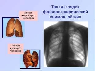 Так выглядит флюорографический снимок лёгких Лёгкое некурящего человека Лёгко