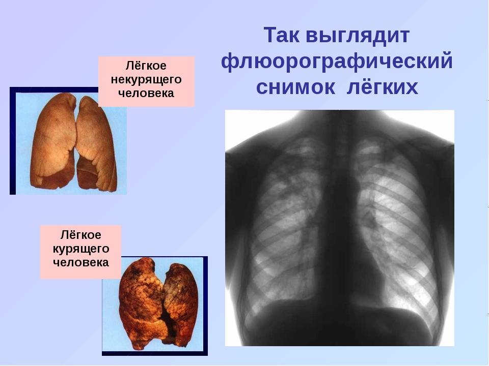 Так выглядит флюорографический снимок лёгких Лёгкое некурящего человека Лёгко...