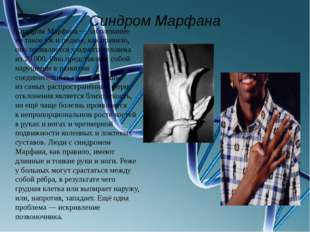 Синдром Марфана Синдром Марфана— заболевание нетакое ужиредкое, как прави