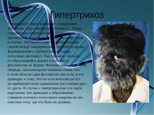 Гипертрихоз Гипертрихоз также называют «синдромом оборотня» или «синдромом Аб