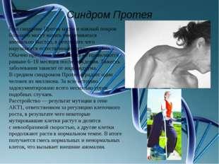 Синдром Протея При синдроме Протея кости икожный покров больного могут начат