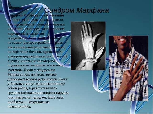 Синдром Марфана Синдром Марфана— заболевание нетакое ужиредкое, как прави...