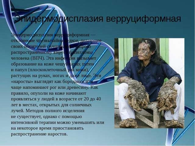 Эпидермодисплазия верруциформная Эпидермодисплазия верруциформная— отклонени...