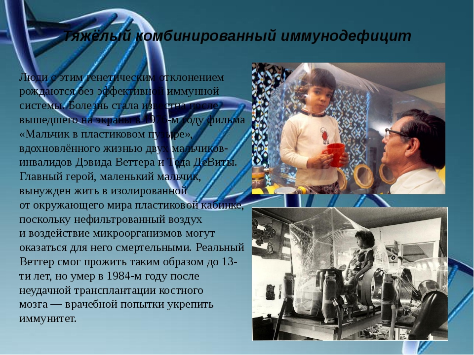 Тяжёлый комбинированный иммунодефицит Люди сэтим генетическим отклонением ро...