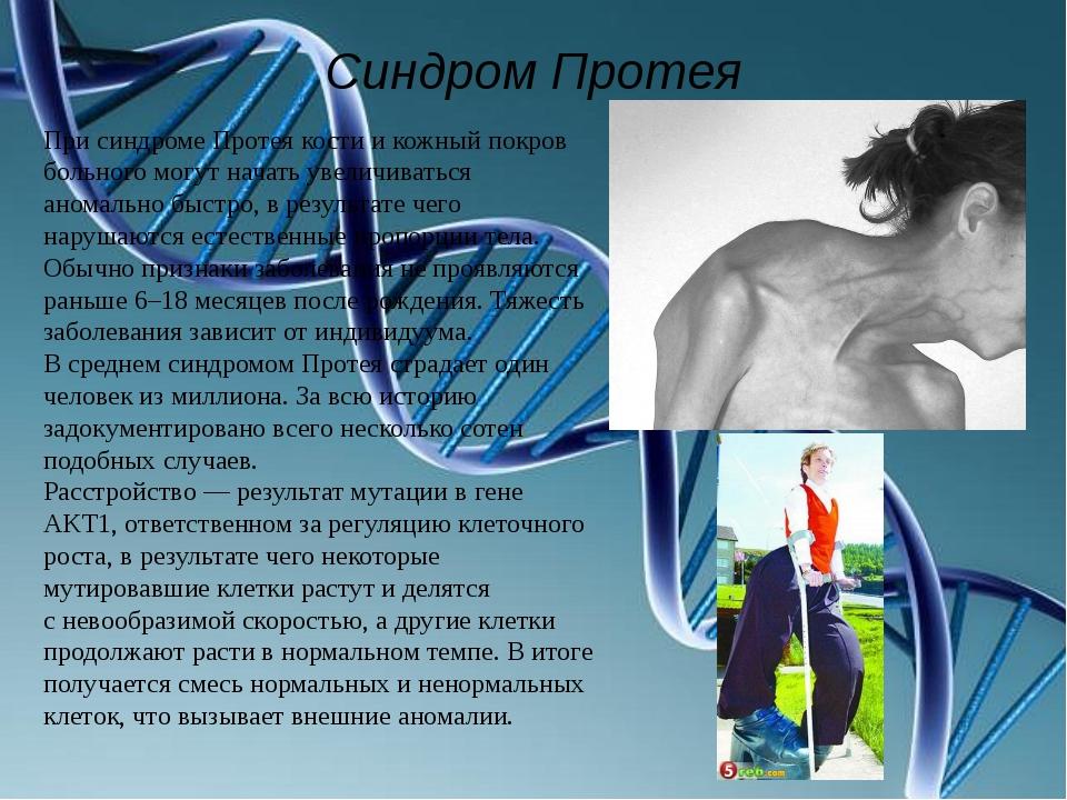 Синдром Протея При синдроме Протея кости икожный покров больного могут начат...