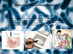 Диагностика ахондроплазии Как правило, ахондроплазия обнаруживается при ультр