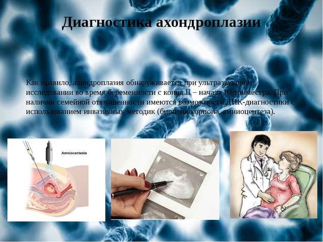 Диагностика ахондроплазии Как правило, ахондроплазия обнаруживается при ультр...