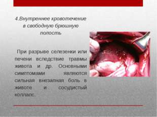 4.Внутреннее кровотечение в свободную брюшную полость При разрыве селезенки и