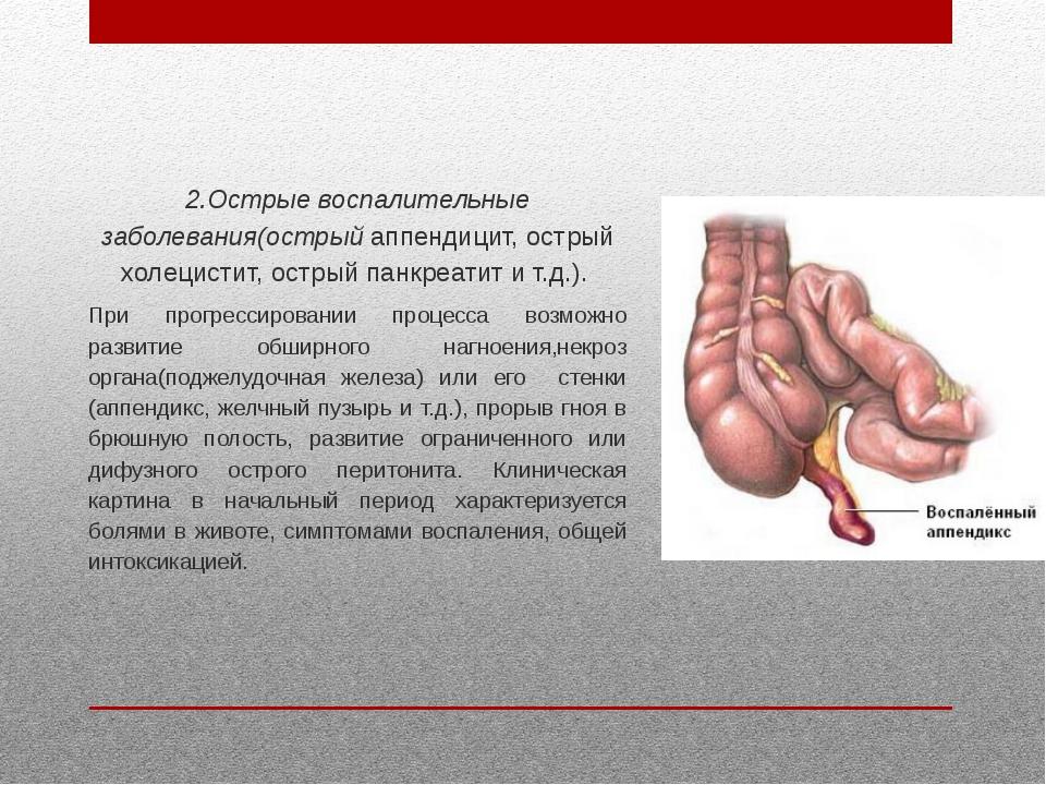 2.Острые воспалительные заболевания(острый аппендицит, острый холецистит, ост...