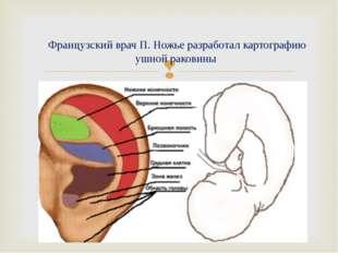 Французский врач П. Ножье разработал картографию ушной раковины