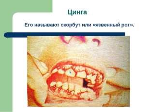 Цинга Его называют скорбут или «язвенный рот».