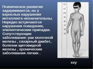 хxy Xхyy ххy Психическое развитие задерживается, но у взрослых нарушения инте