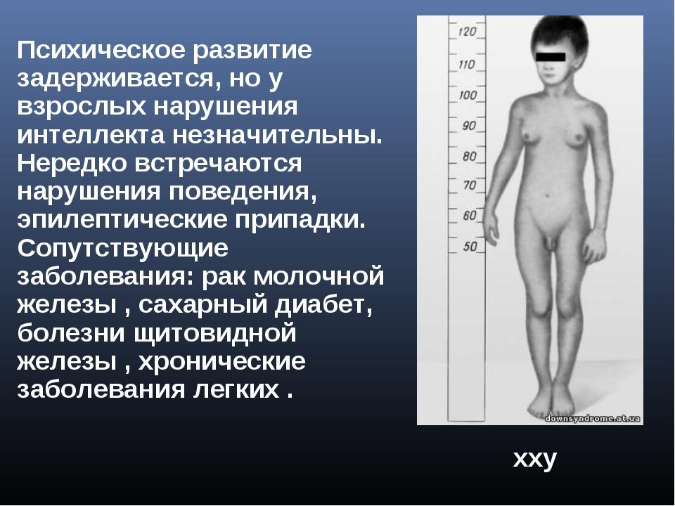 хxy Xхyy ххy Психическое развитие задерживается, но у взрослых нарушения инте...